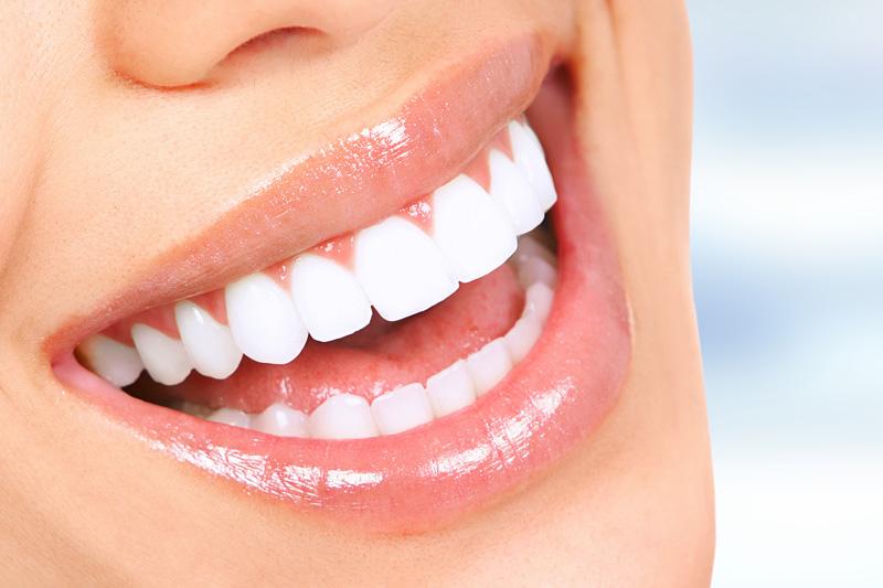 All Smiles Dental Fresno Special Offer