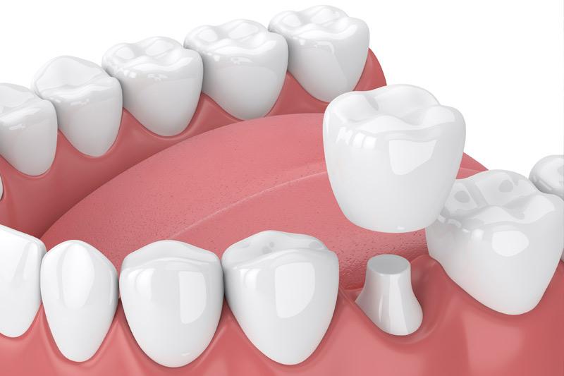 Dental Crowns in Fresno
