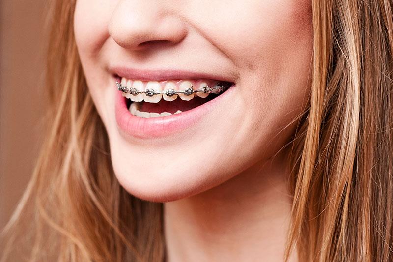Orthodontics in Fresno