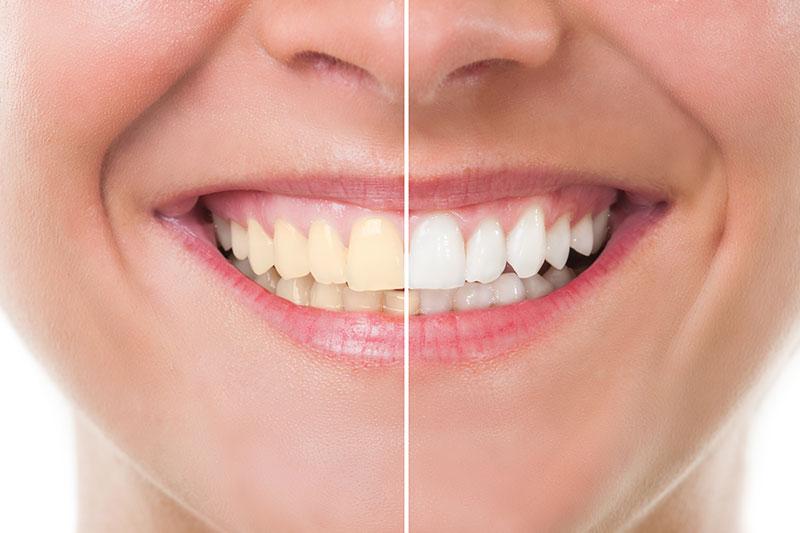 Teeth Whitening in Fresno